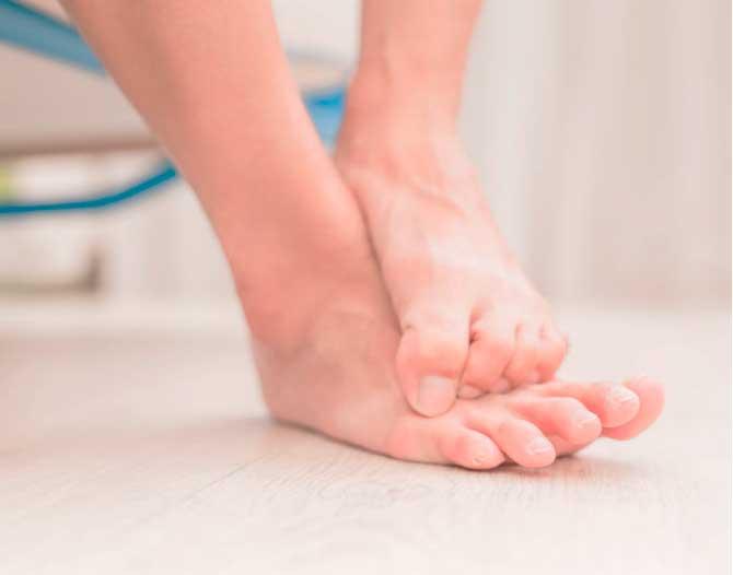Cómo prevenir hongos en los pies