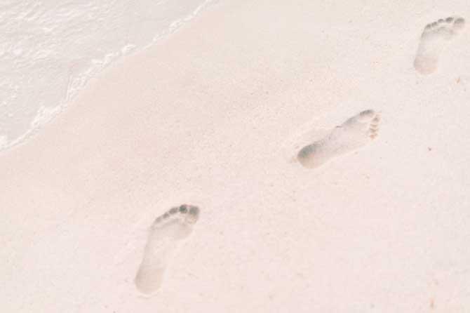 Conoce más sobre los pies cavos