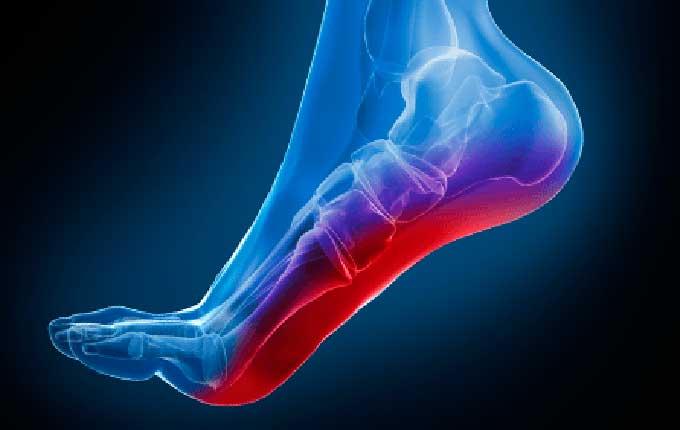 Plantillas para el dolor de pies